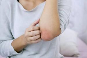 皮肤痒当心是肝癌先兆皮肤上的这3个癌症信号别太晚知道