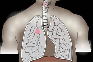 肺结核传达竟如此简略医师提示三种方法传达肺结核早防备